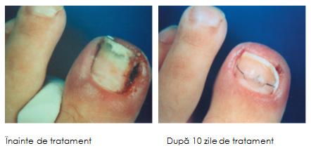 tratament pentru unghii acasa