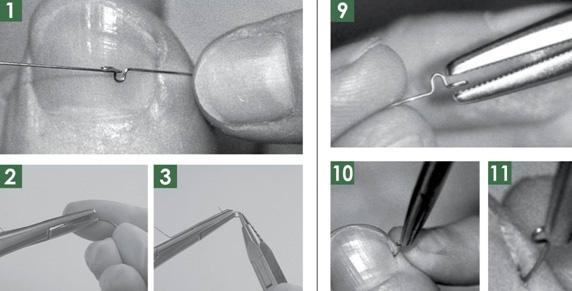 Tratamente sigure pentru vindecarea unghiilor încarnate sau deformate